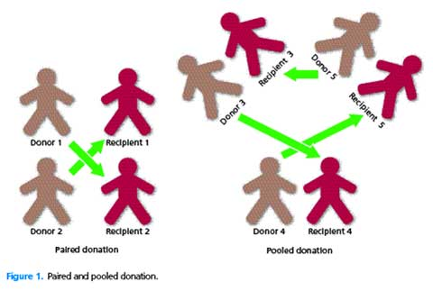Figure 1. Paired and pooled donation